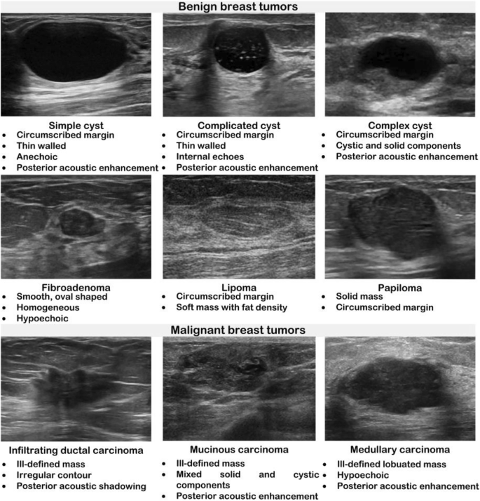 Deep Feature Extraction And Classification Of Breast Ultrasound