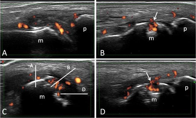 Ultrasound Imaging In Rheumatoid Arthritis Springerlink