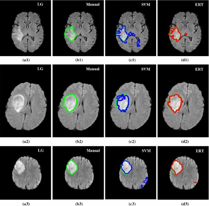 Automated brain tumour detection and segmentation using superpixel ...