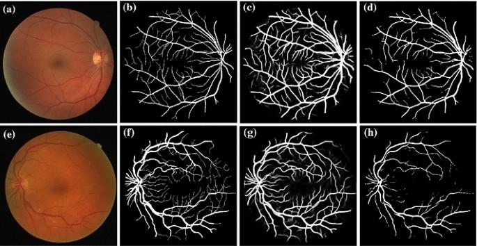 Multi-level deep supervised networks for retinal vessel ...