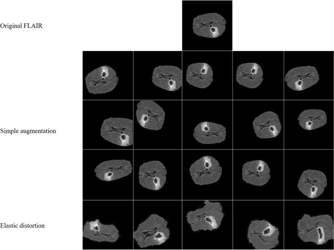 DeepSeg: deep neural network framework for automatic brain tumor ...