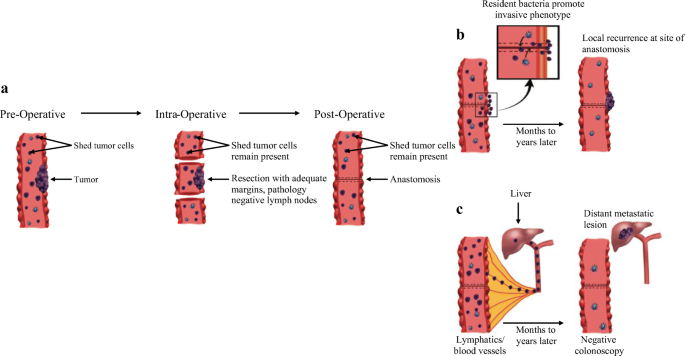 The Role Of The Intestinal Microbiome On Colorectal Cancer Pathogenesis And Its Recurrence Following Surgery Springerlink