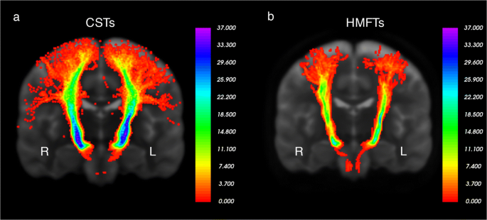 Individual variations of the human corticospinal tract and its ...