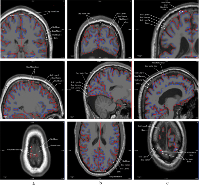 Identifying errors in Freesurfer automated skull stripping and the ...