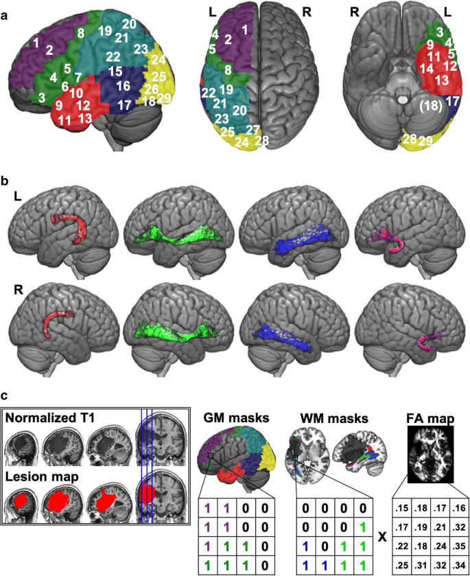 The utility of lesion classification in predicting language and ...