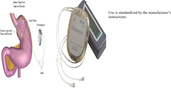 Standardization of Bariatric Metabolic Procedures: World Consensus ...