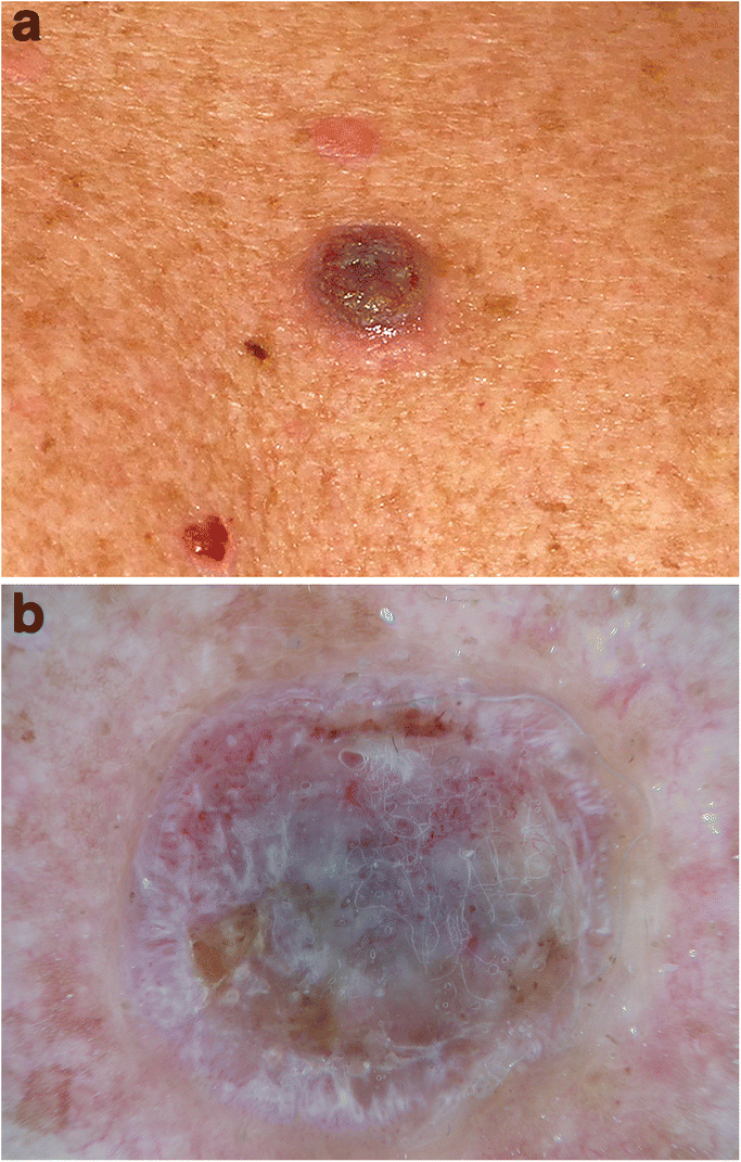 Dermatoscopy Of Neoplastic Skin Lesions Recent Advances Updates And Revisions Springerlink