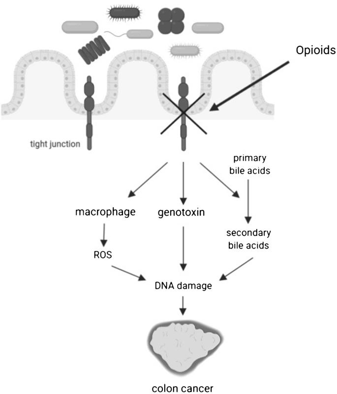Opioids In Cancer Development Progression And Metastasis Focus On Colorectal Cancer Springerlink