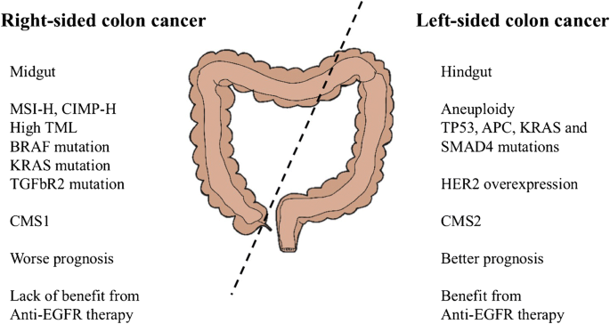 Molecular Variances Between Right And Left Sided Colon Cancers Springerlink