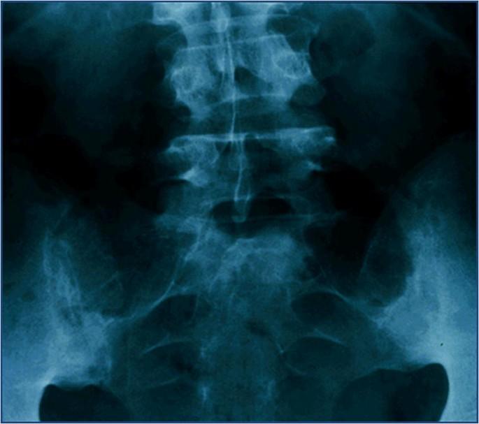 Edema eltávolítása a prosztatitisből Prostatitis Vancomycin