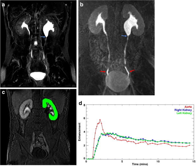 Use Of Mr Urography In Pediatric Patients Springerlink