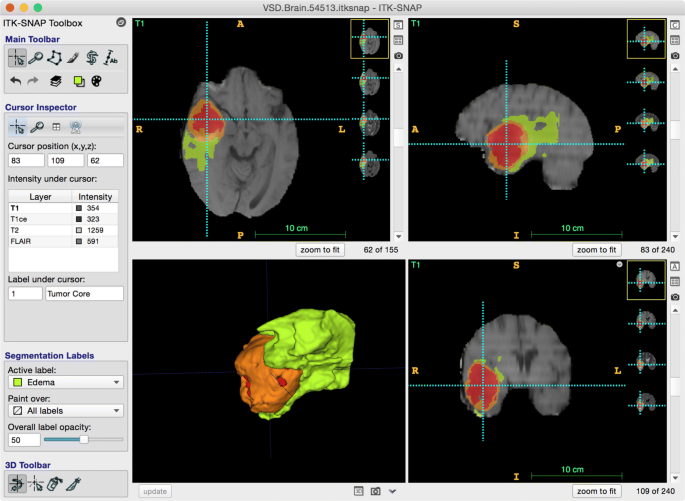User-Guided Segmentation of Multi-modality Medical Imaging ...