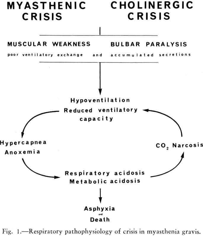 Breaking Down Myasthenic Crisis   SpringerLink