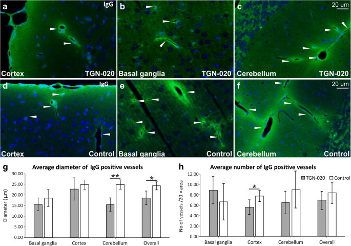 Inhibition of Aquaporin 4 Decreases Amyloid A 40 Drainage Around ...