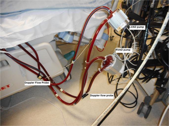 Outcome of CentriMag  extracorporeal mechanical circulatory ...