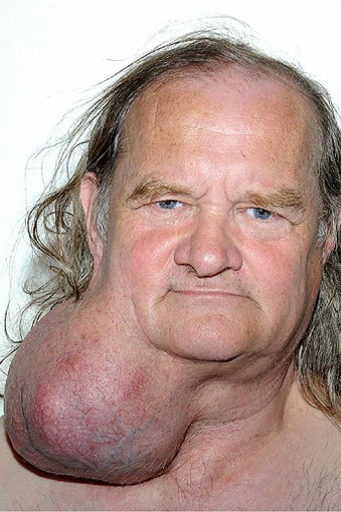 pleomorphic adenoma symptoms nhs