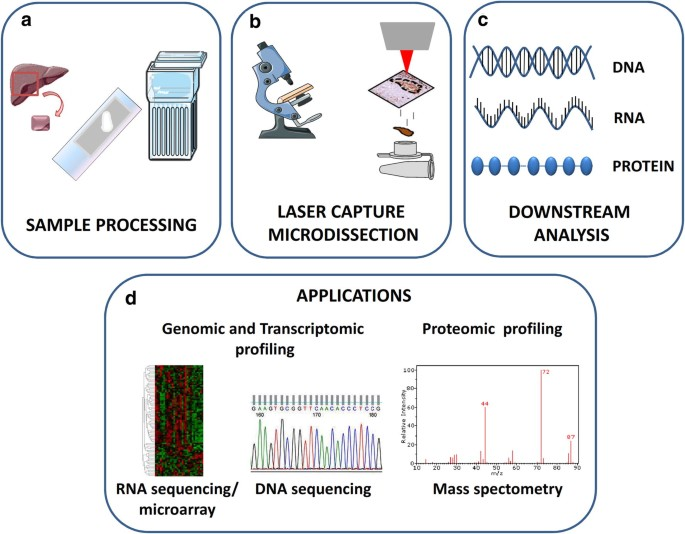 Laser capture microdissection: techniques and applications in liver  diseases   SpringerLink