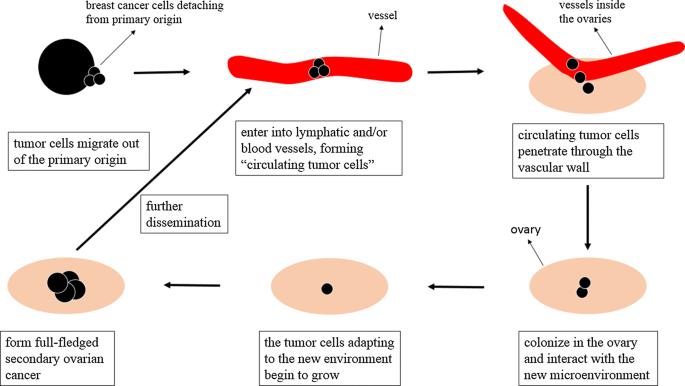 Metastaze de cancer ovarian