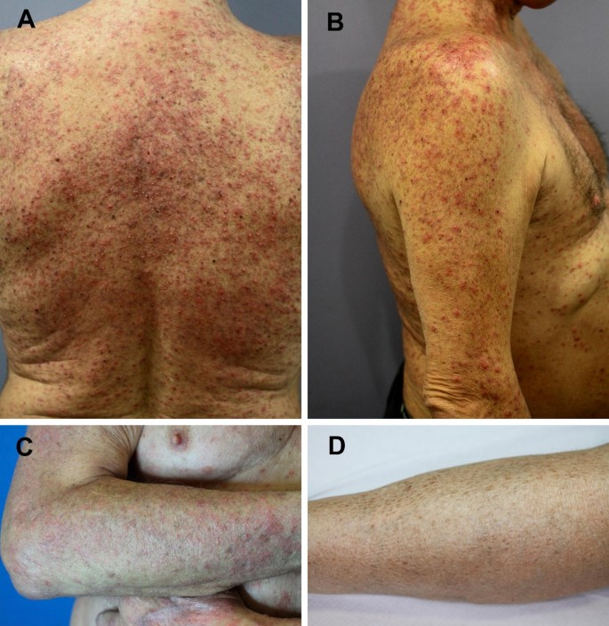 Clinical Management Of Cutaneous Adverse Events In Patients On Targeted Anticancer Therapies And Immunotherapies A National Consensus Statement By The Spanish Academy Of Dermatology And Venereology And The Spanish Society Of Medical