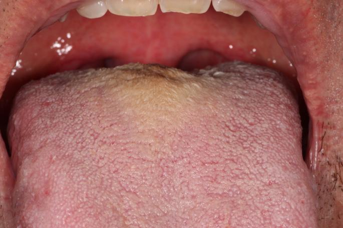 hpv tongue skin