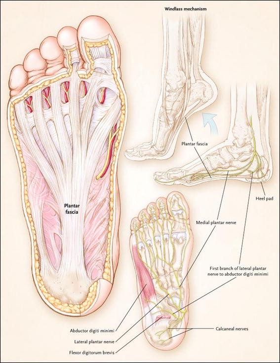 The Real Risks Of Steroid Injection For Plantar Fasciitis With A Review Of Conservative Therapies Springerlink
