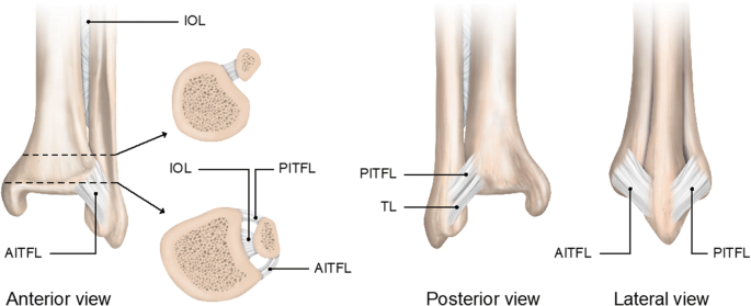 Return To Play After A Lateral Ligament Ankle Sprain Springerlink