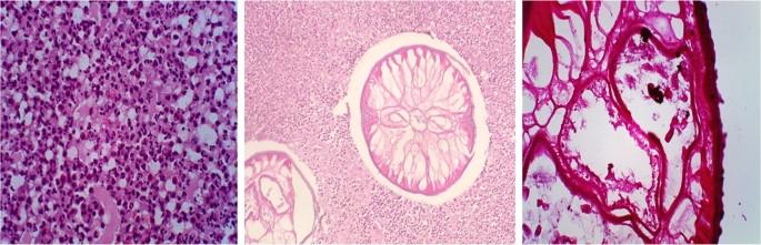 enterobius eosinophilia)