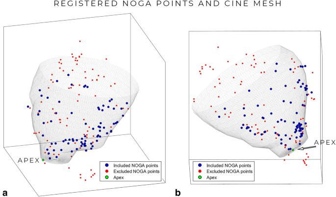 3D Myocardial Scar Prediction Model Derived from Multimodality ...