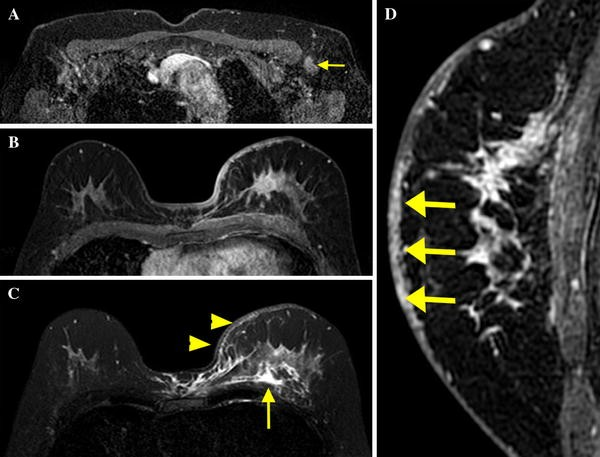 Mri Findings Of Inflammatory Breast Cancer Locally Advanced