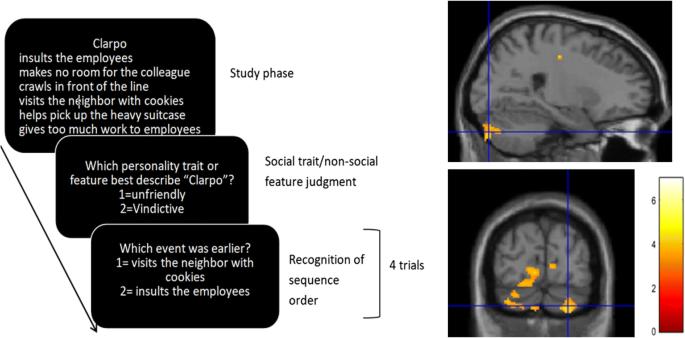 Consensus Paper: Cerebellum and Social Cognition | SpringerLink