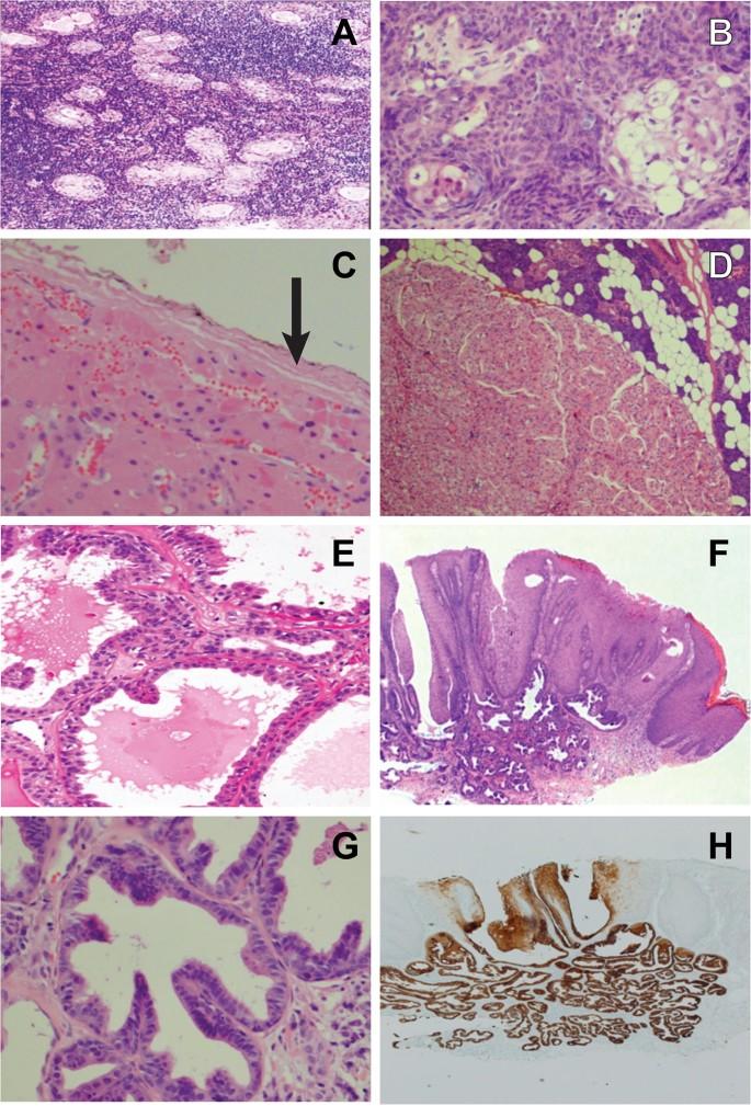Ductal papilloma of salivary gland
