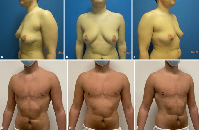 Weibliche hormone für brustwachstum beim mann