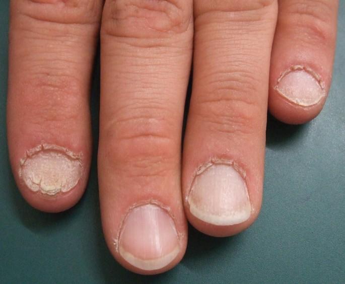 Dicke fingernägel