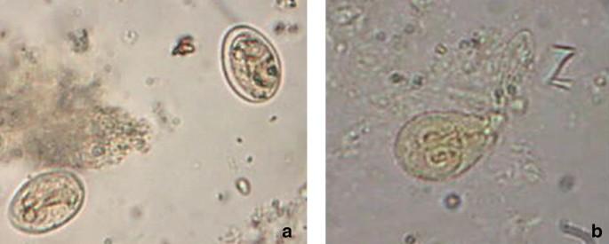 prosztatarák hisztopatológiája mennyi enterobiosis történik