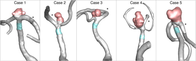Real-World Variability in the Prediction of Intracranial Aneurysm ...