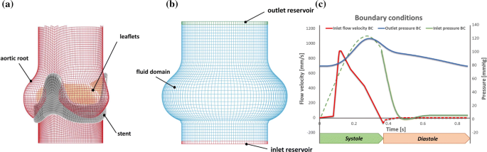 Validation and Extension of a Fluid–Structure Interaction Model of ...
