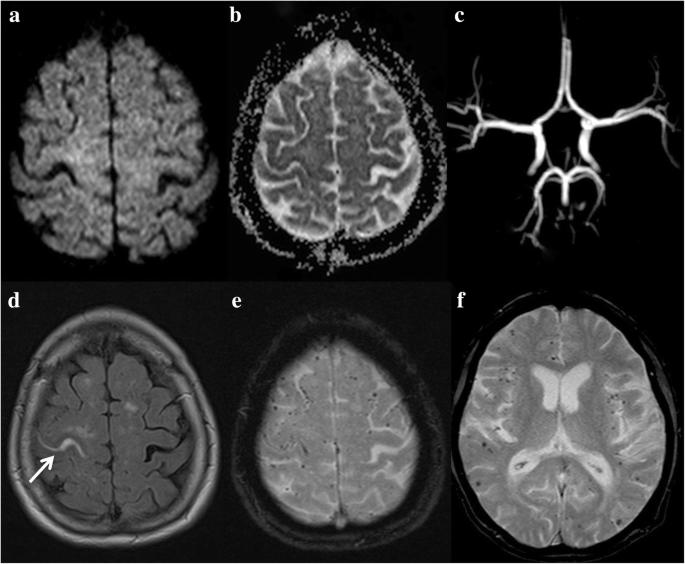 Magnetic resonance imaging of arterial stroke mimics: a