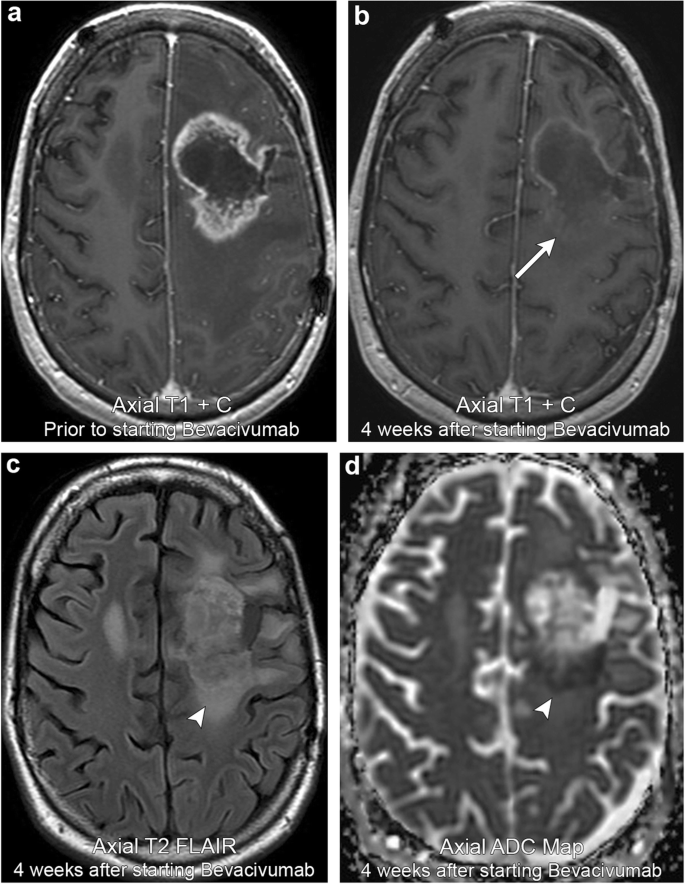 Brain Tumour Post Treatment Imaging And Treatment Related