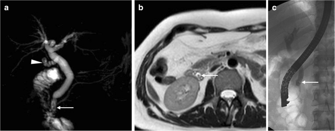 Early cross-sectional imaging following open and