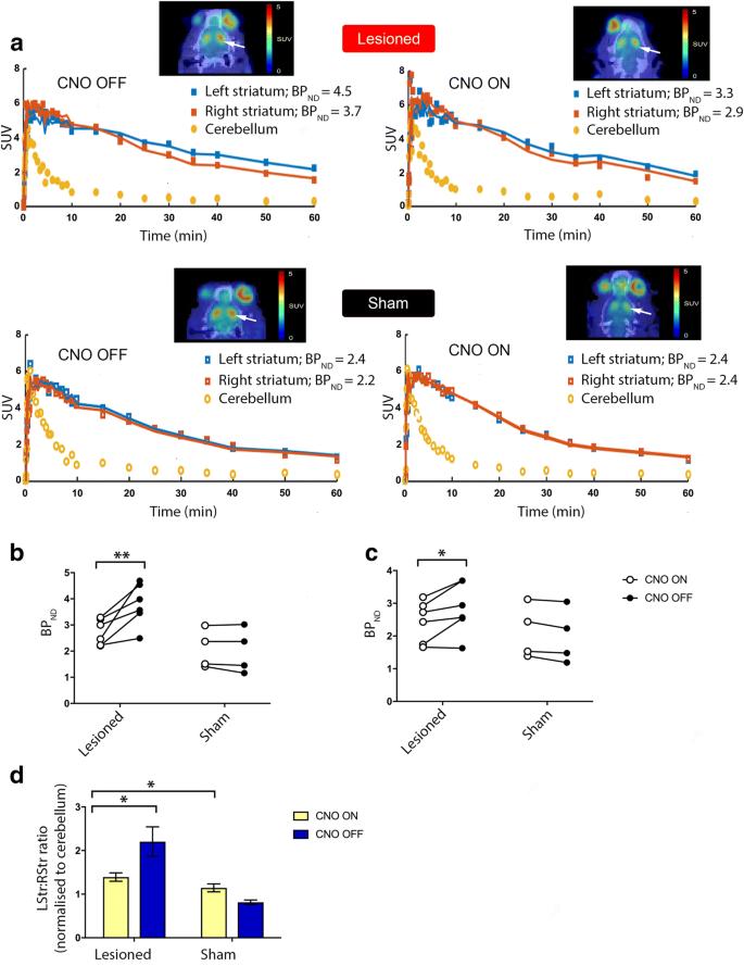 DREADD Activation of Pedunculopontine Cholinergic Neurons Reverses ...
