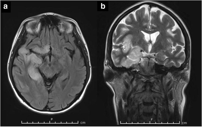 Cerebral Venous Thrombosis A Rare Complication Of Herpes Simplex Encephalitis Springerlink