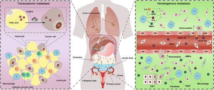 Current Insights Into The Metastasis Of Epithelial Ovarian Cancer Hopes And Hurdles Springerlink