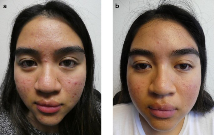 Acne Vulgaris A Patient And Physician S Experience Springerlink