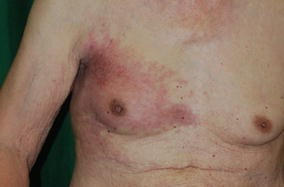 A Case Of Male Inflammatory Breast Cancer Springerlink