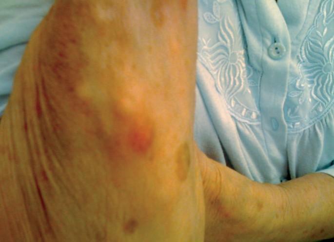 Unterarm knoten Knoten unter