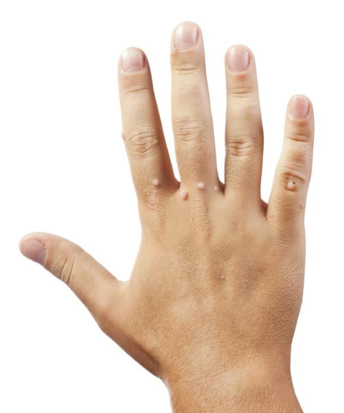 Hpv warze finger