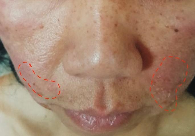 dysbiosis rosacea)