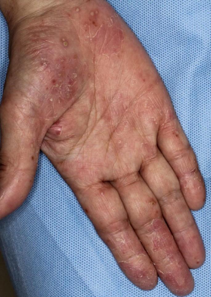 palmoplantar pustulosis száraz foltok a bőrön