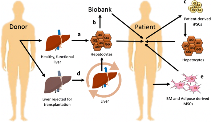 Liver Bioengineering: Promise, Pitfalls, and Hurdles to Overcome |  SpringerLink