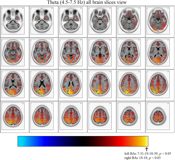 Electroencephalographic (EEG) alterations in young women with high ...